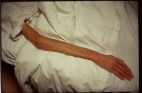 Nan Goldin, Gilles arm, 1993, Paris.